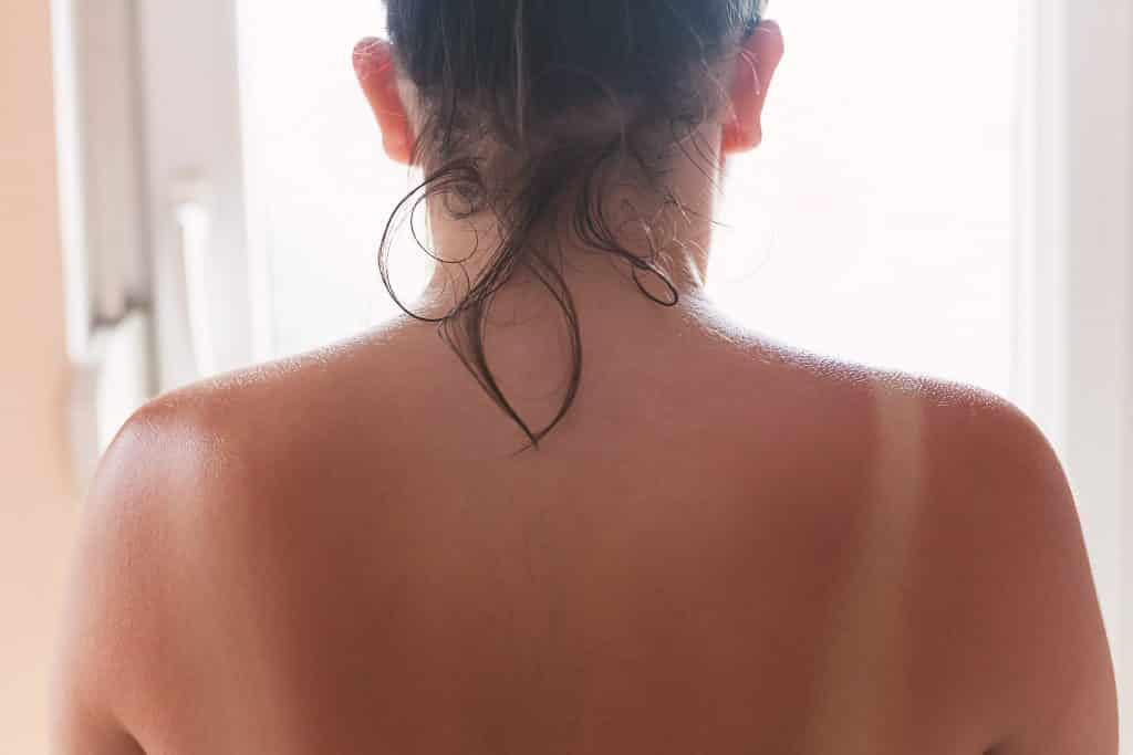 Sunburns are very common on sunny days on the Emerald Isle
